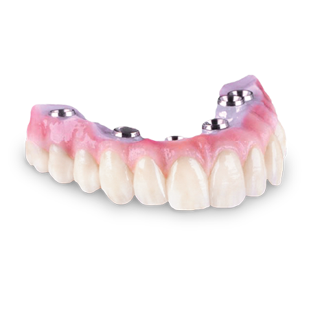 Zirconia Hybrid Bridge